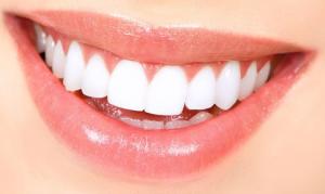 Perma smile, come si usa, ingredienti, composizione, funziona