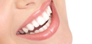 Perma smile, prezzo, funziona, recensioni, opinioni, forum, Italia